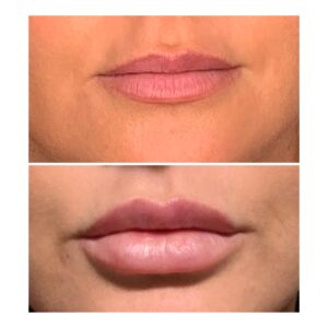Lips – proportion is everything
